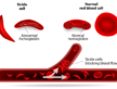 First new treatment for sickle cell in 20 years